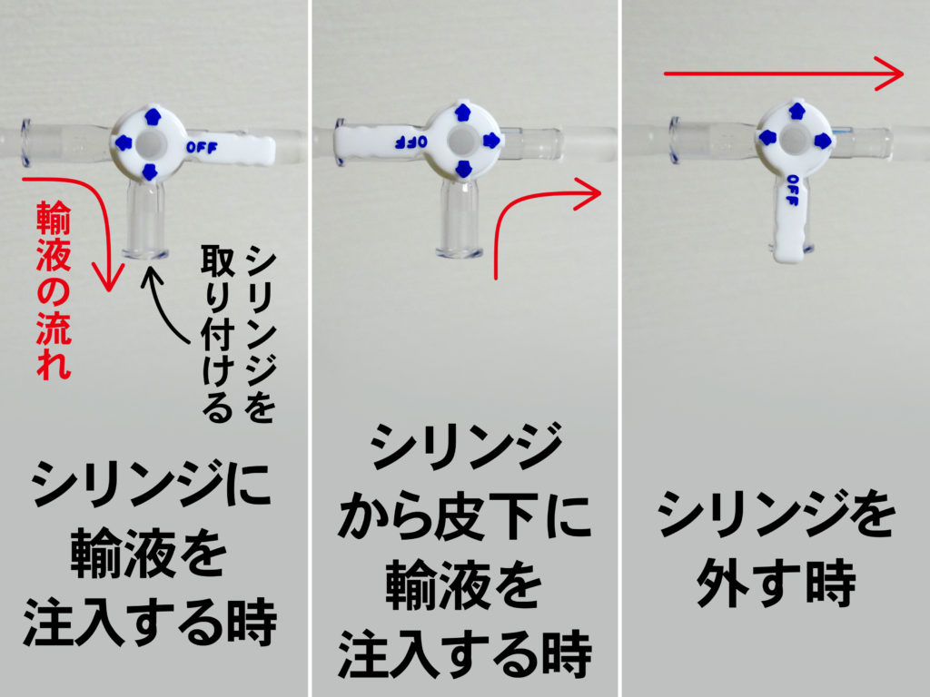シリンジのコックの向きと輸液の流れる方向