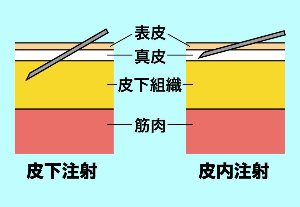 皮下点滴で針を刺す角度の比較